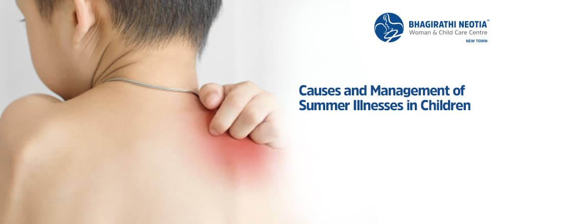 Causes and Management of Summer Illnesses in Children